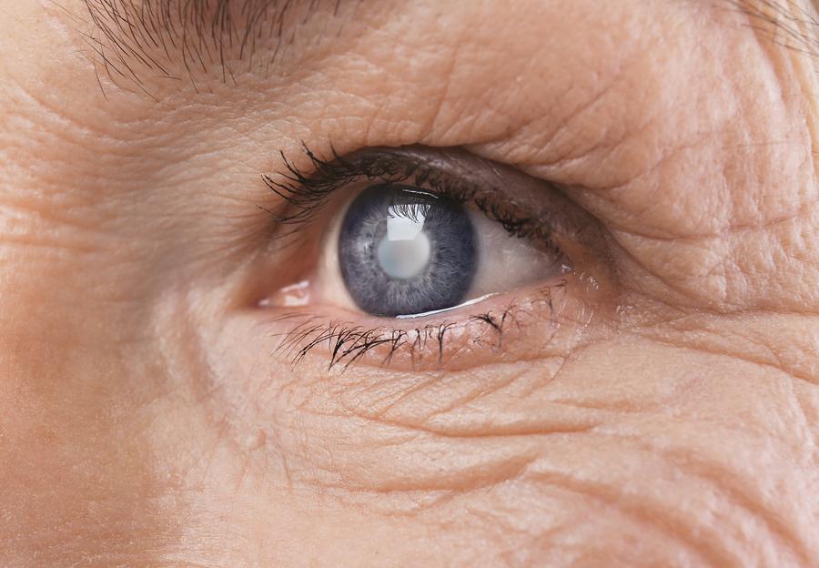 Με μεγαλύτερη ασφάλεια οδηγούν αυτοί που έχουν κάνει επέμβαση καταρράκτη στα μάτια